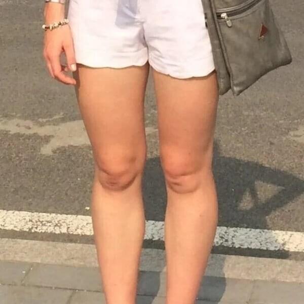 Девушки порой так комплексуют из-за коленей, что перестают носить короткие юбки и платья