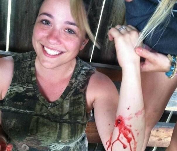 Несмотря на рану, она очень мило улыбается