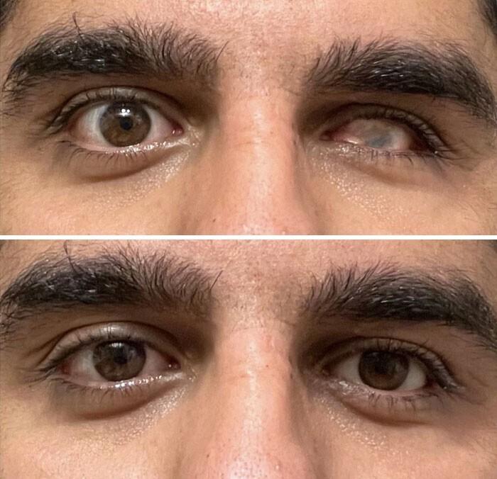 """Фотографии до и после того, как я вставляю свой искусственный глаз"""""""