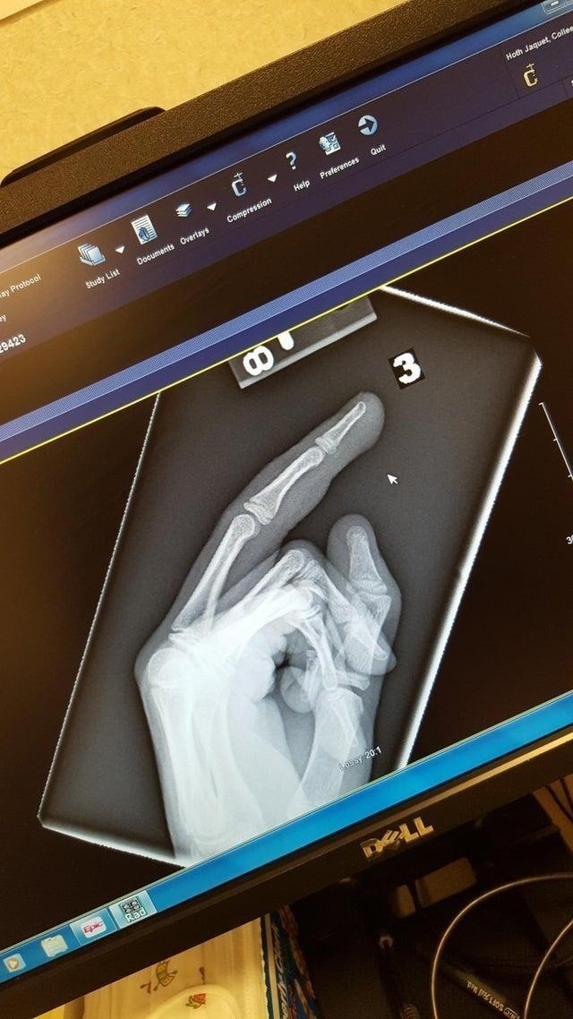 Моя дочь прищемила дверью палец на руке. Перелом не выявили, но рентген получился оскорбительным