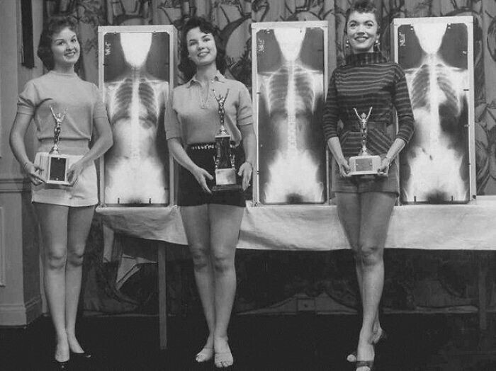 """Конкурс """"Мисс идеальная осанка"""" в Чикаго, 1956 год. По условиям конкурса, участницы предъявляли свои рентгеновские снимки"""