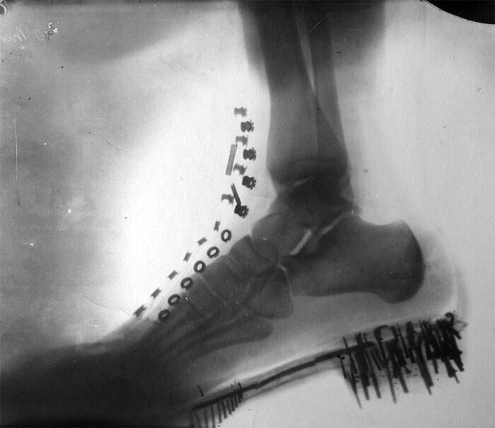 Нога Николы Теслы в ботинке: рентгеновский снимок, сделанный им самим на аппарате собственной конструкции в 1896 году
