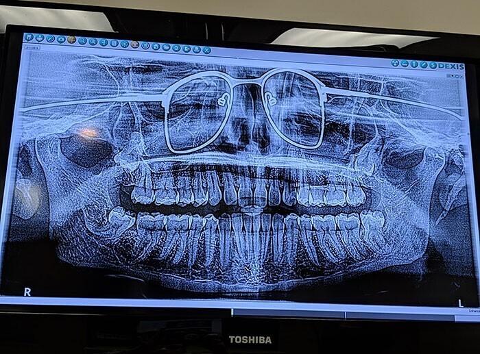 """""""Вчера у дантиста делал панорамный снимок зубов. Забыл снять очки"""""""