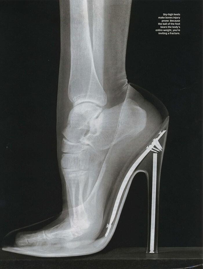 Рентген женской стопы на шпильке