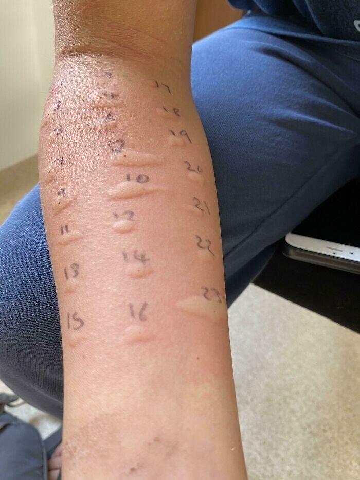 """""""Отвела 12-летнего сына к врачу на аллергопробы. Оказалось, что аллергия у него примерно на все"""""""