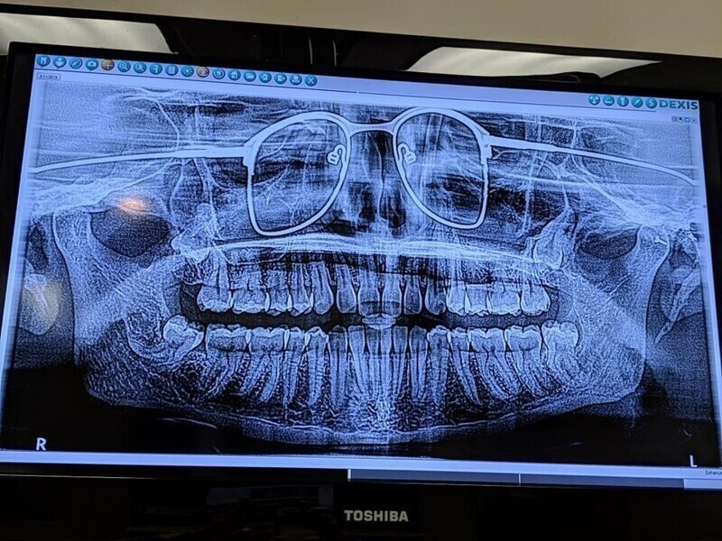 Стоматолог забыл попросить меня снять очки на рентгене