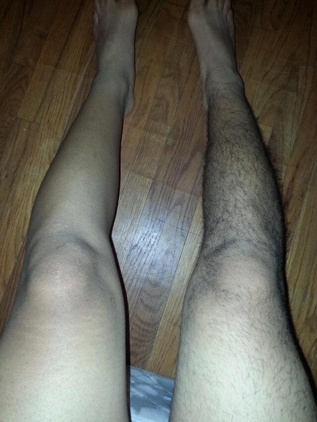 Я проснулся утром, и увидел, что что-то не так с моими ногами