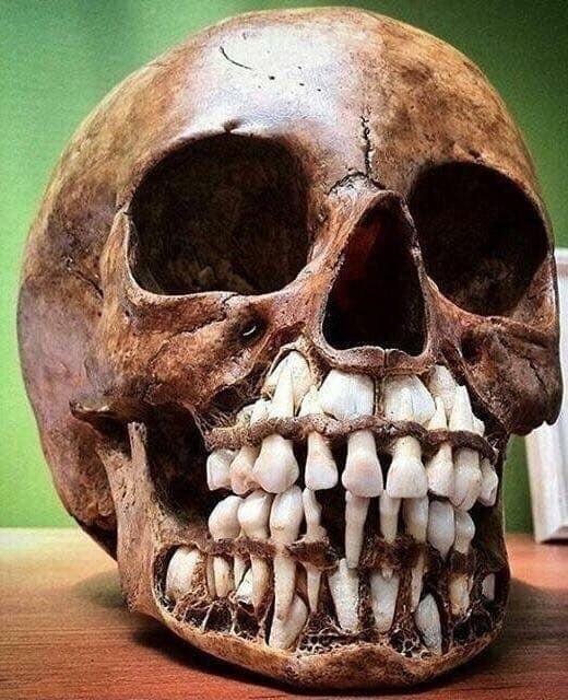 Череп ребенка с молочными зубами