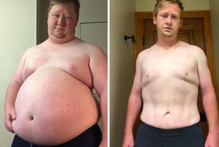 """""""Сбросил за год 90 килограммов: придерживался диеты и проходил по 5 километров в день"""""""