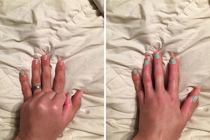 """6. Потерявшая палец девушка красила ногти, и муж предложил побыть ее """"суррогатным мизинцем"""""""