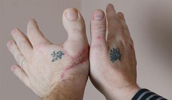 Так выглядит рука с пересаженным большим пальцем ноги