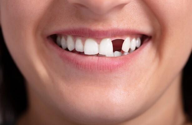 5. Плохие зубы