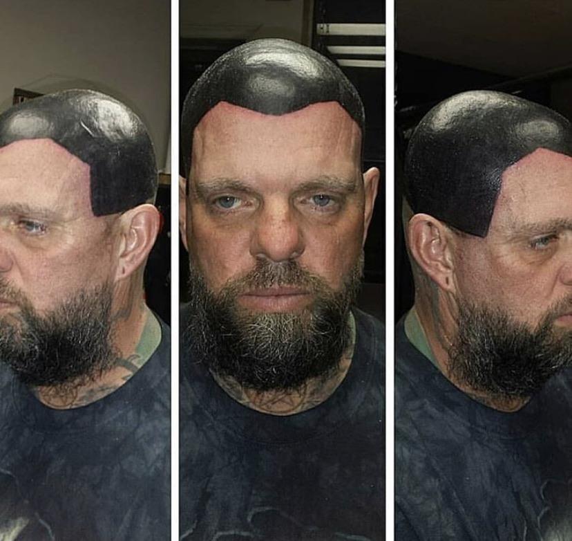 Татуировка дешевле, чем пересадка волос
