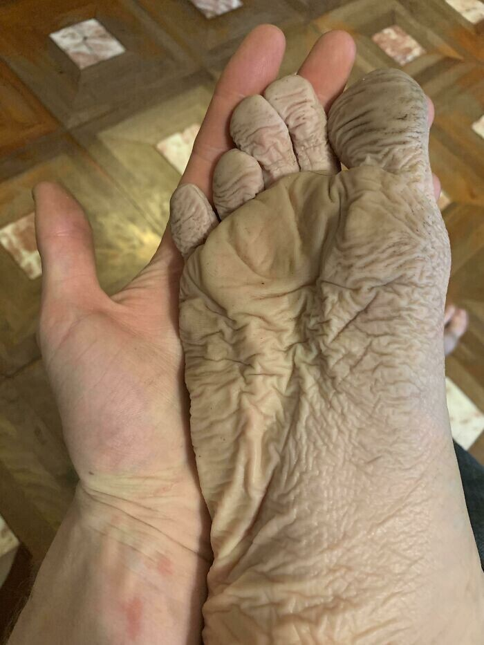 """""""Так выглядит моя нога после того, как я 10 часов провел в мокрух насквозь ботинках"""""""