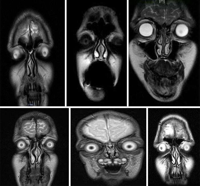 Портреты людей, полученные на МРТ