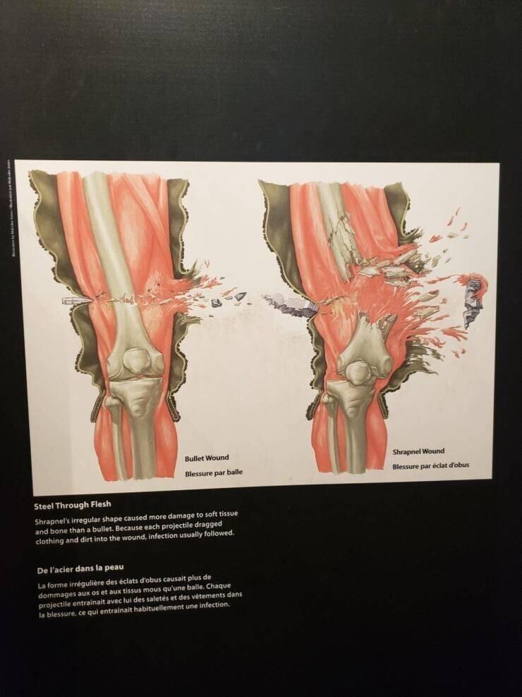 Разница между пулевым и осколочным ранением