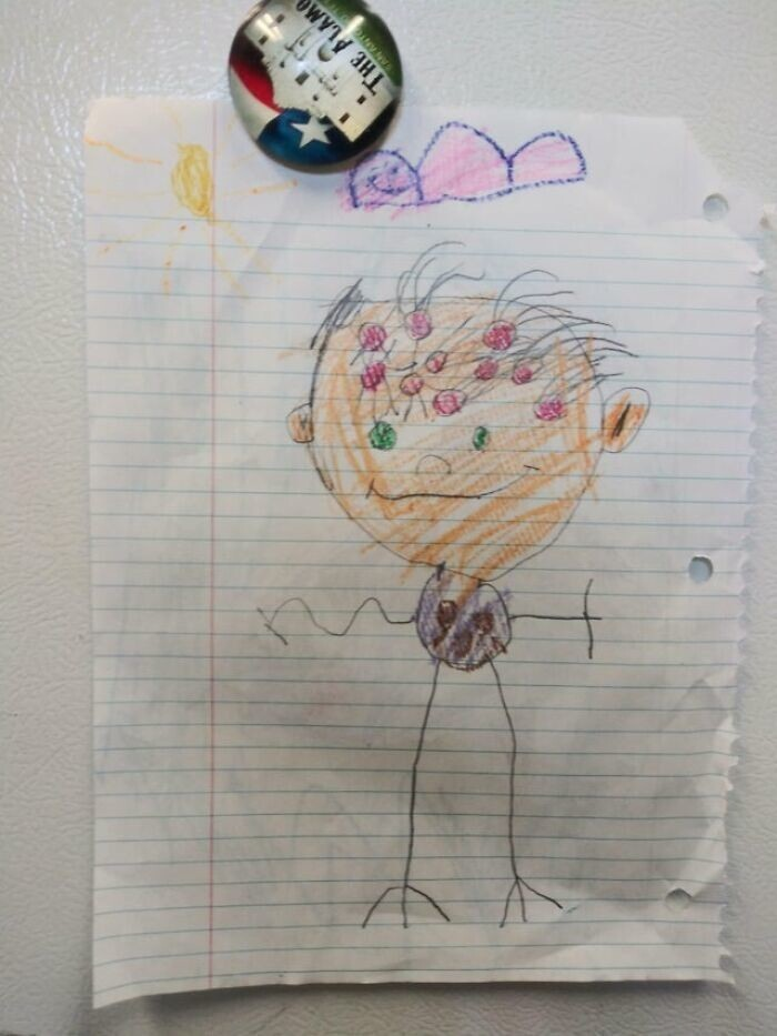 """25. """"Рисунок моей четырехлетней дочери. Красные кружочки - """"дырки, из которых растут волосы""""."""
