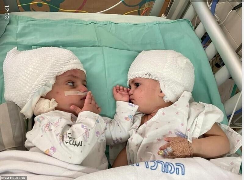 После операции: девочки впервые видят друг друга