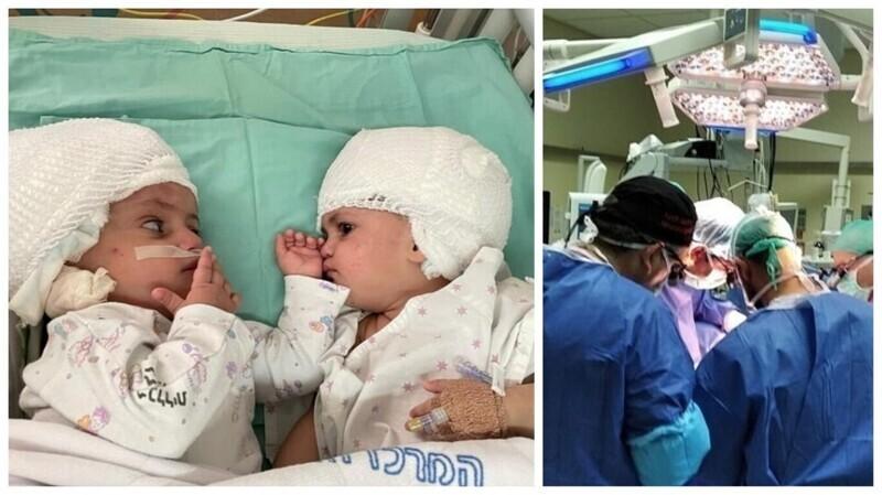 Израильские медики успешно разделили двух сестер-близняшек