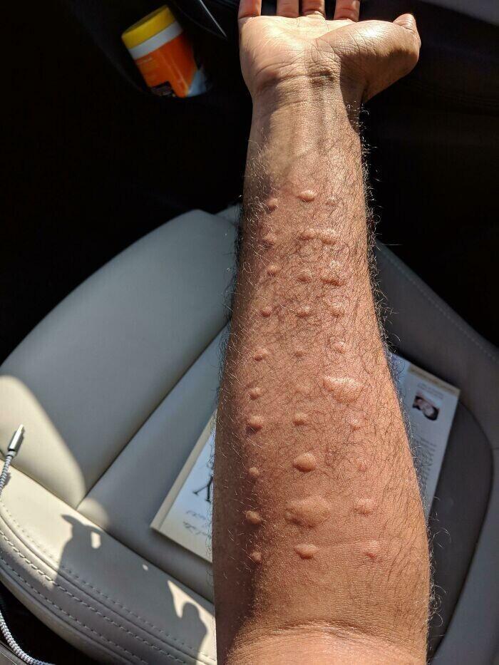 """""""Сегодня мне сделали тесты на аллергию. Мое тело реагирует на каждый аллерген"""""""