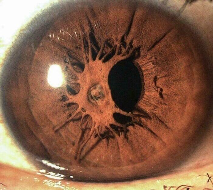 31. Остаточная мембрана зрачка - состояние глаза с остатками эмбриональной мембраны, которые остаются как нити, пересекающие зрачок