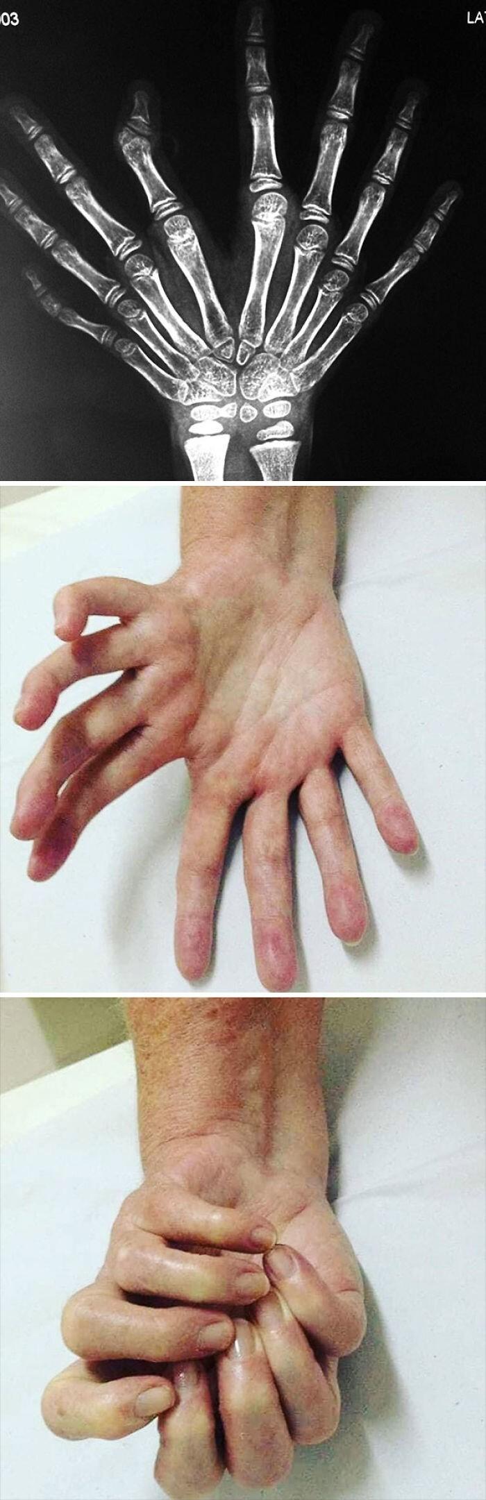 Ульнарная димелия или синдром зеркальной руки