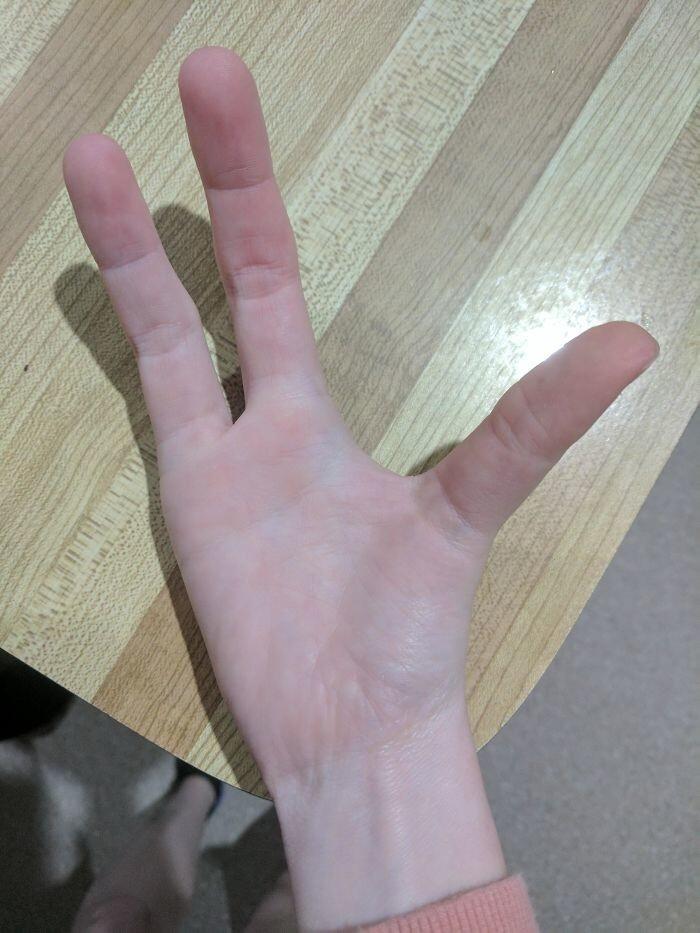 Эктродактилия или расщепленная рука