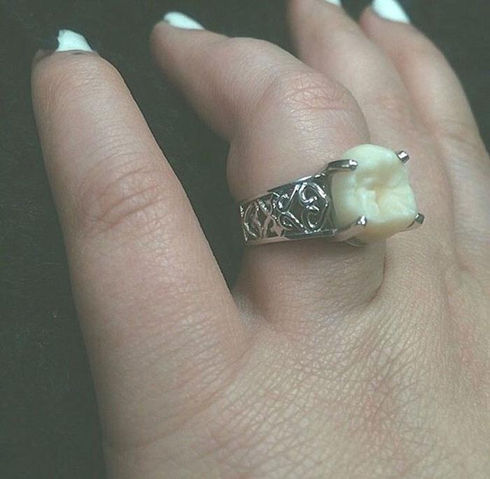 Эта женщина получила обручальное кольцо с зубом мудрости жениха! А вам слабо?