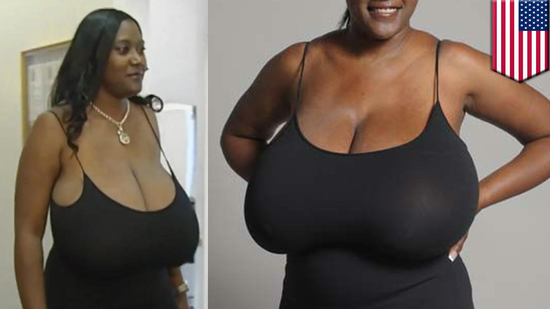 Si puede ser el cáncer de mama de implantov