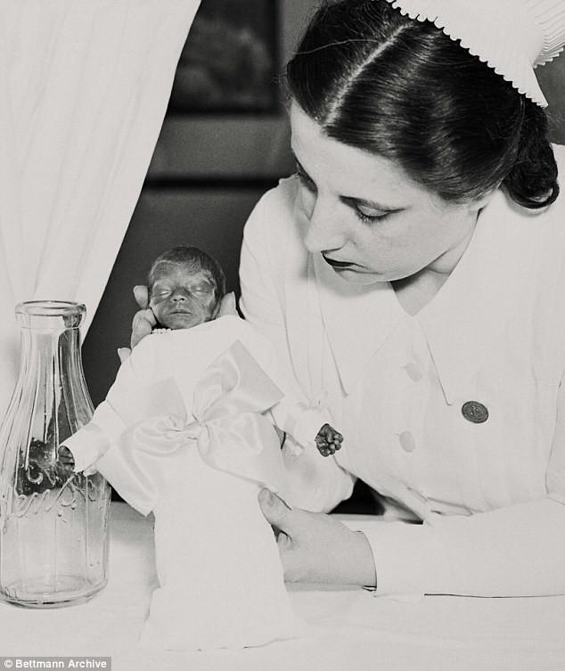 Как аттракцион на Кони-Айленд спас жизни тысячам недоношенных младенцев