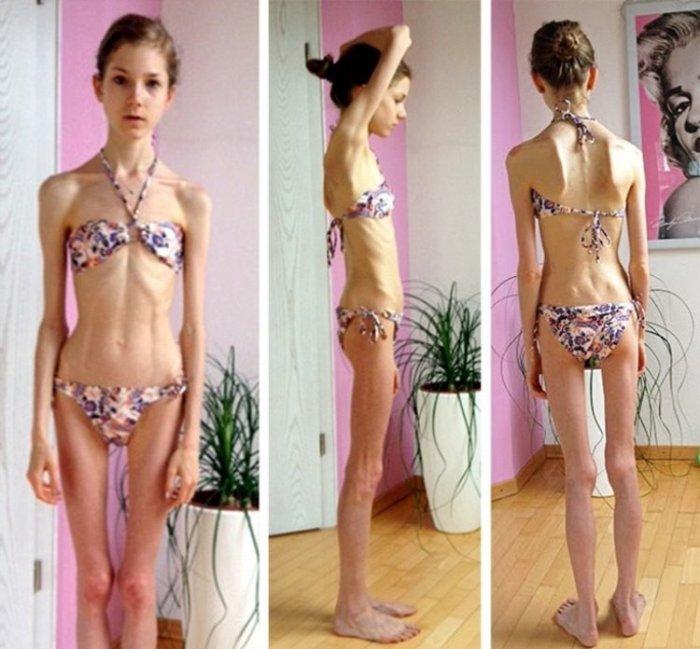 как помочь подростку похудеть
