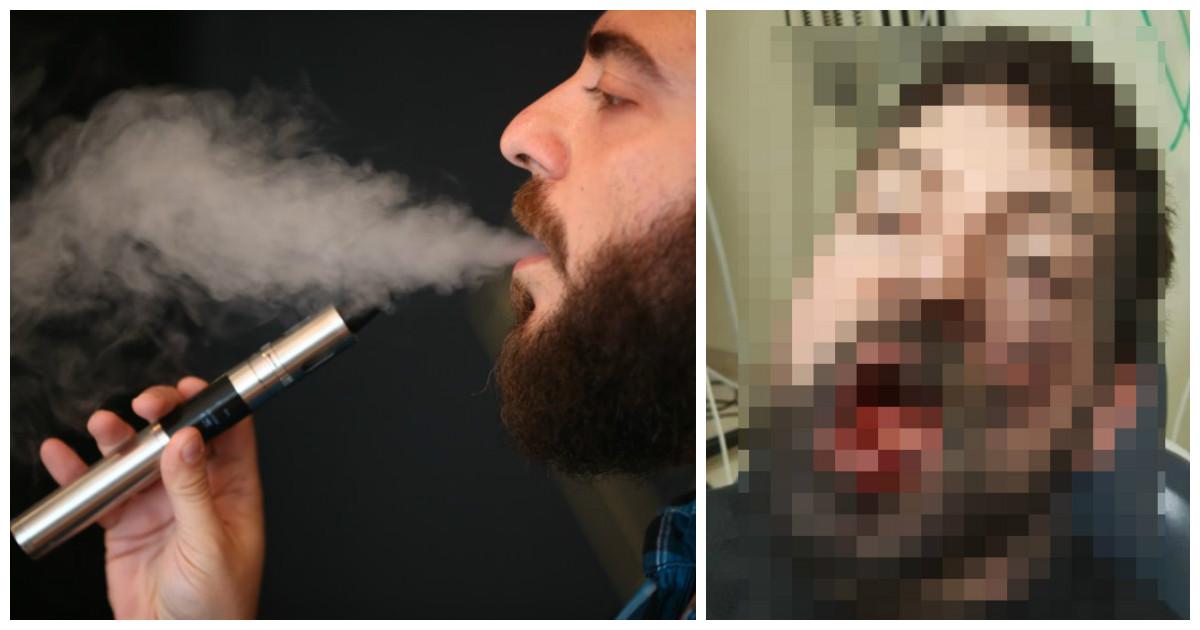 Взорвавшаяся электронная сигарета лишила 30-летнего мужчину нескольких зубов и наградила ожогами 2-й степени