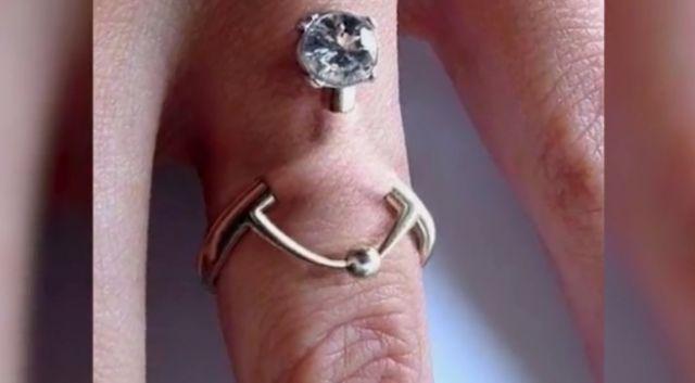 Теперь не загуляешь: обручальные кольца начали вшивать в пальцы