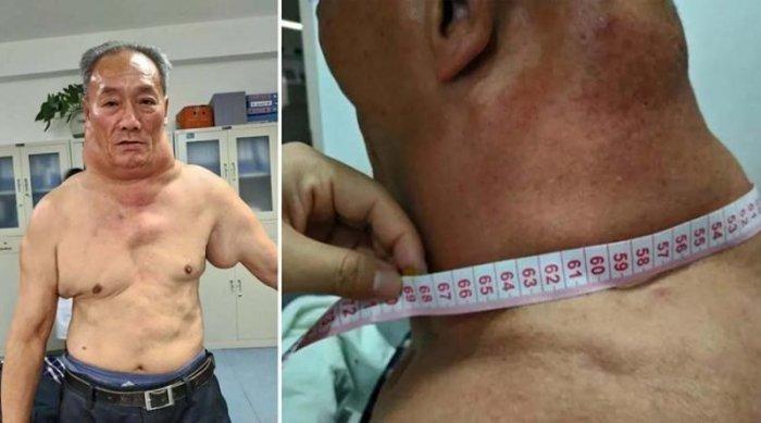 После 30 лет пьянства китаец превратился в «Халка»