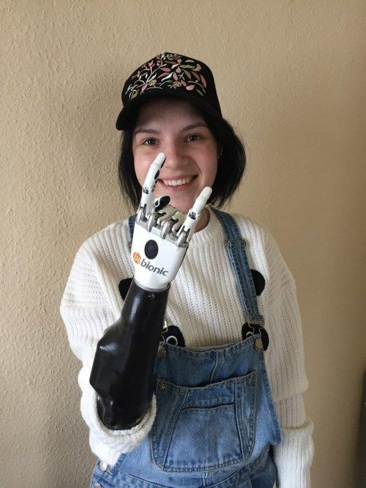 «У вашей мамы теперь руки, как у робота»: женщине, которой муж отрубил кисти, сделали протезы
