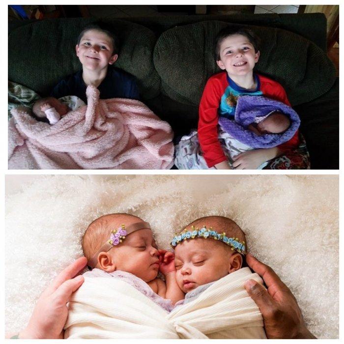 Один шанс из 10 миллионов: в семье родились две пары близнецов