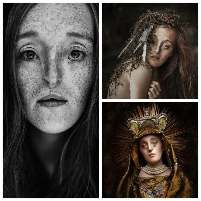 Внутренняя красота: девушка с дефектом лица поражает своими волшебными фото