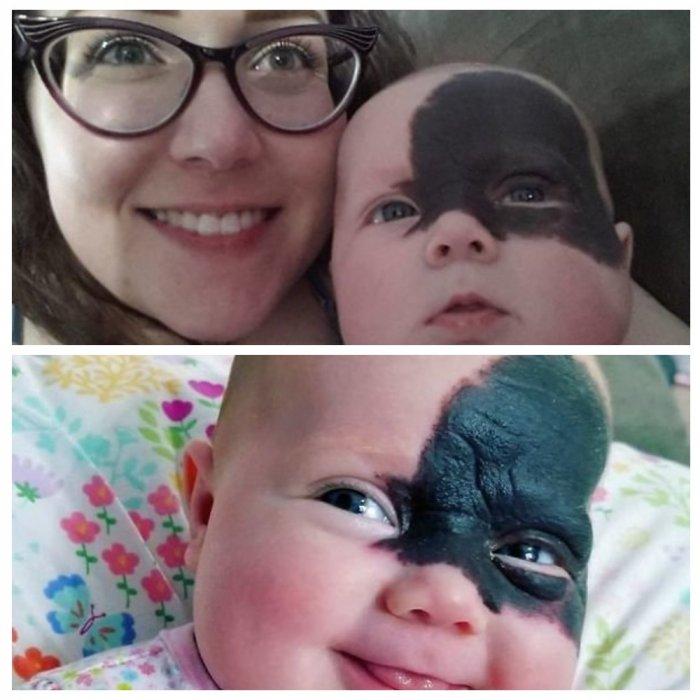 """""""Наш маленький супергеройчик"""": малышка появилась на свет с огромным родимым пятном"""
